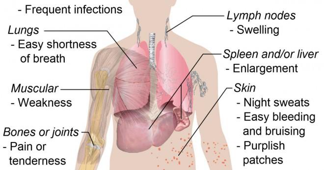 Vad finns olika typer av sjukdomar som behandlas med kemoterapi?