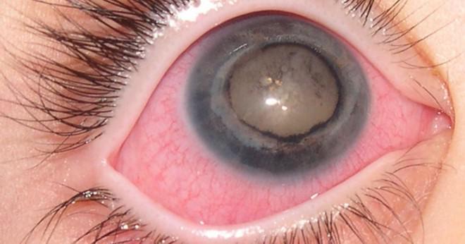 gult i ögat
