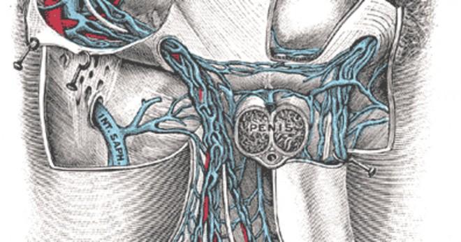 Vad orsakar smärta och förstorade testiklar?