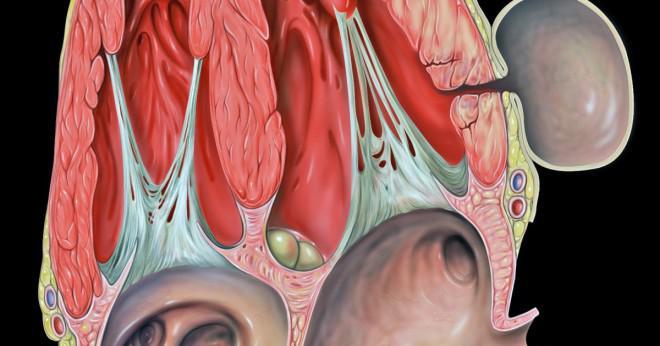Vad är prognosen för en ventrikulära aneurysm?