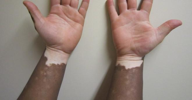 vad är vitiligo