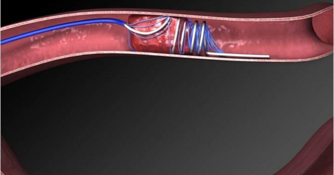 Efter en stroke hur kan en läkare berätta som påverkades halvklotet?