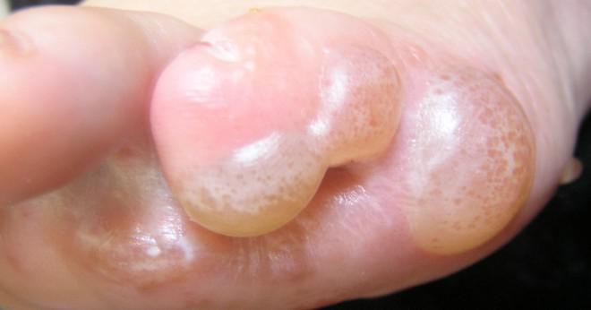 allergisk mot ägg symptom