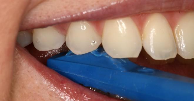 borttagning av tand