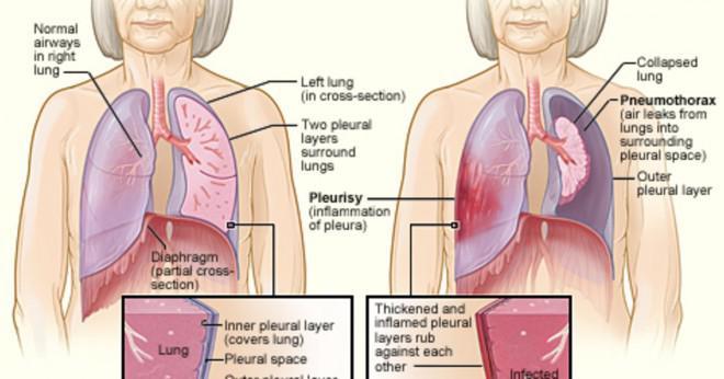 ont i bröstet när jag nyser