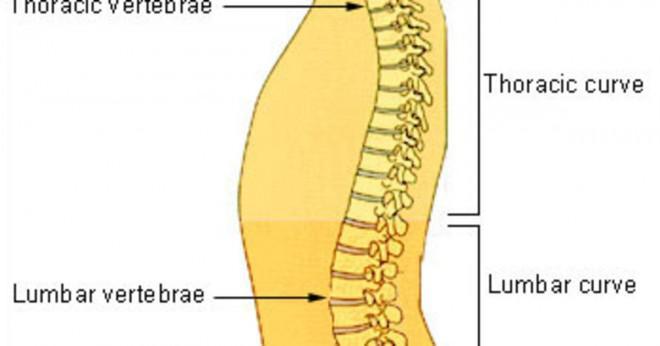 Bästa smärtstillande medel för svår kronisk smärta till spinal?