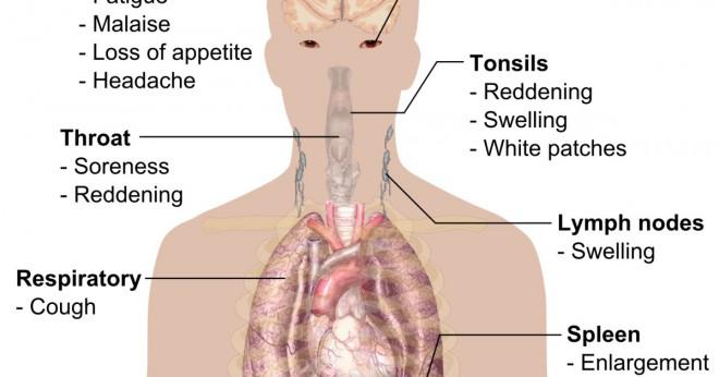 Kan du ha mononukleos och influensa samtidigt?