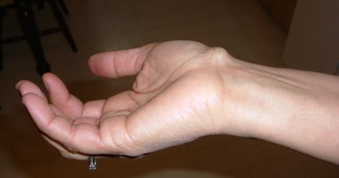 Du utvecklat en stor knöl på handen efter faller och skadar din handled kan detta vara ett ben som aldrig helt läkt?